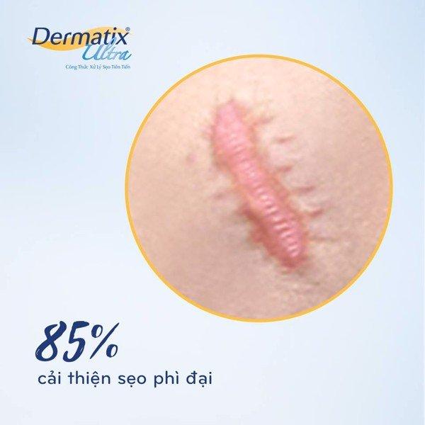 Cải thiện đến 85% tình trạng sẹo