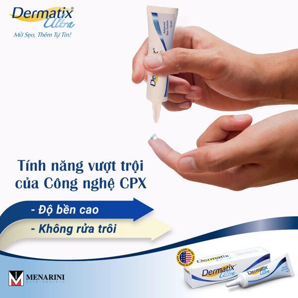 Kem trị sẹo Dermatix ultra an toàn