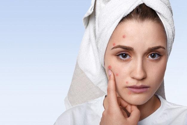 Mỹ phẩm Graymelin dành cho da nhạy cảm và có vấn đề về mụn.