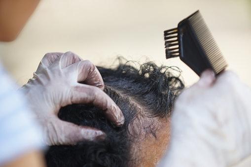 Thuốc nhuộm tóc thông thườngTôi có thể sử dụng người da đen không?