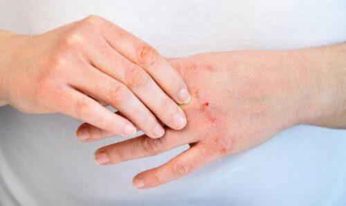 Kem dưỡng da tay tốt giúp xua tan nổi lo khô, nứt nẻ da tay