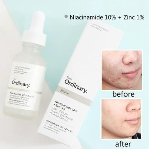 Serum trị mụn Niacinamide 10% + Zinc 1% The Ordinary