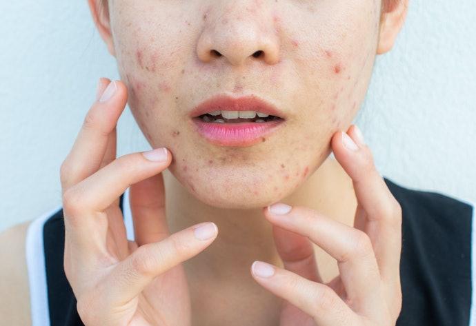 Axit salicylic, có hiệu quả trong việc loại bỏ sẹo mụn