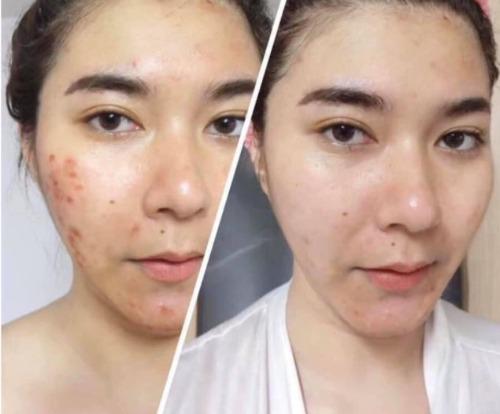 Chăm da đúng cách giúp trị mụn nhanh chóng và làm giảm vết thâm