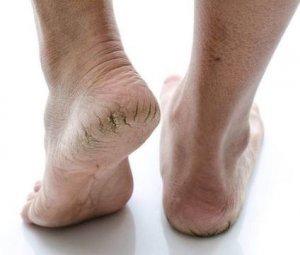 Gót chân nứt nẻ gây khó chịu