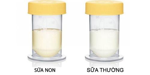 Sữa non - dinh dưỡng vàng cho bé giai đoạn đầu đời
