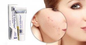Sản phẩm điều trị sẹo Scar Esthetique mang đến hiệu quả cao khi sử dụng
